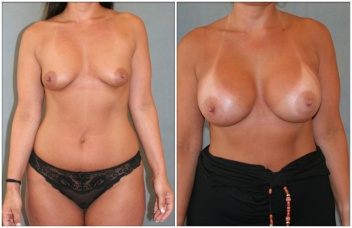 breast-2