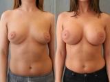 breast-aug6